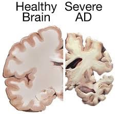 brain-ad